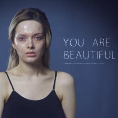 Son acné est moquée sur le Web : elle répond avec une vidéo bouleversante