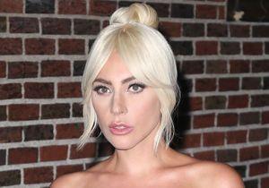 Lady Gaga parle de chirurgie esthétique et lève le voile sur son addiction