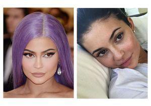 Avant / après : ces stars sans maquillage affichent leurs taches de rousseur