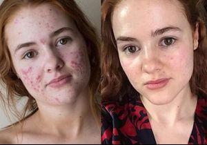 Touchée par l'acné sévère, cette jeune fille a aujourd'hui une peau de bébé