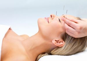 Le lifting par acupuncture en 5 questions