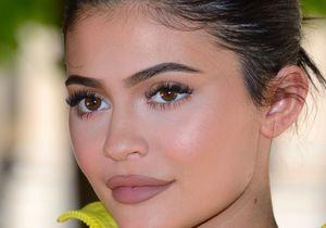 Kylie Jenner : transformée, elle dit stop aux injections dans les lèvres