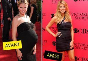 Stars : leur corps avant et après bébé