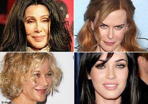 Stars : toutes accros au Botox ?