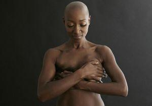 Cancer du sein : elles disent non à la reconstruction