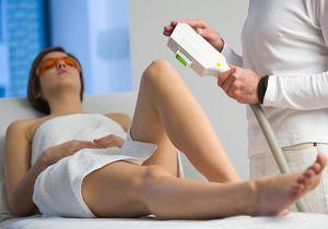 L'épilation laser bientôt réservée aux médecins ?