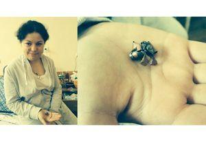 L'infirmière ukrainienne poste la photo de la balle qui a failli la tuer sur Twitter