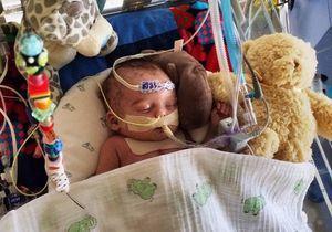 La photo d'un bébé hospitalisé censurée par Facebook