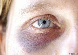 Violences conjugales : les femmes seront plus protégées
