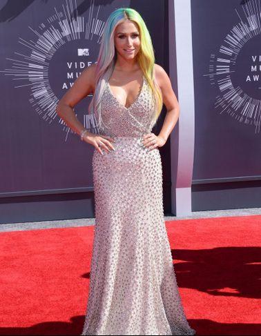 Kesha Sexuellement Agressée : Info Ou Intox ?