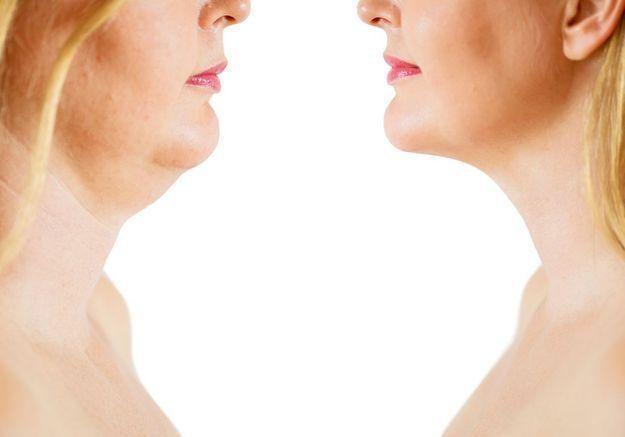 Médecine esthétique : « Mon cou était très ridé »