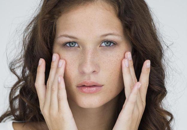 Tout savoir sur l'acné !