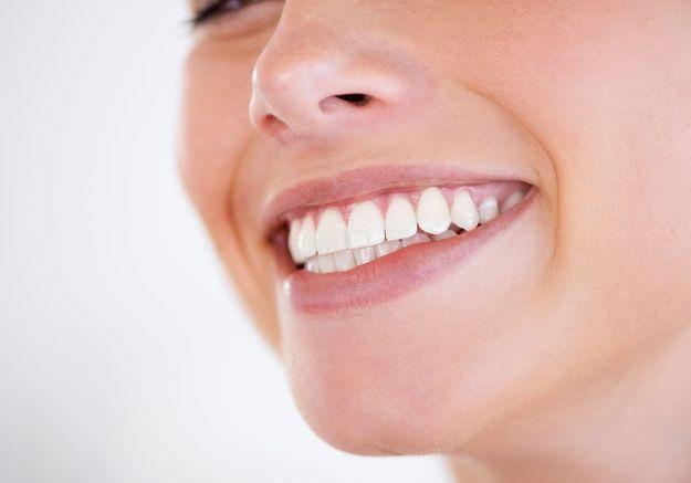 Le prix du sourire : montre-moi tes dents, je te dirai qui tu es