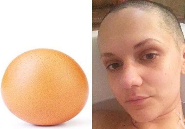 #EggHeadChallenge :  le défi inspirant d'une femme atteinte d'un cancer du sein