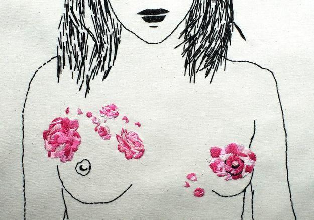Reconstruction mammaire : une pétition pour lutter contre la censure des réseaux sociaux