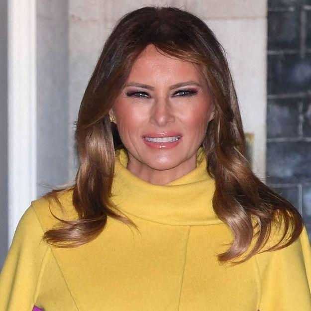 Elle dépense 65 000 $ en chirurgie esthétique pour ressembler à Melania Trump, le résultat est étonnant