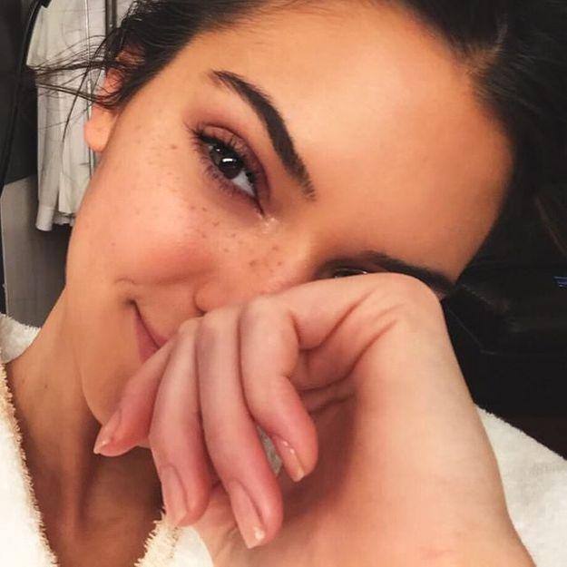 Kendall Jenner a craqué pour les taches de rousseur !