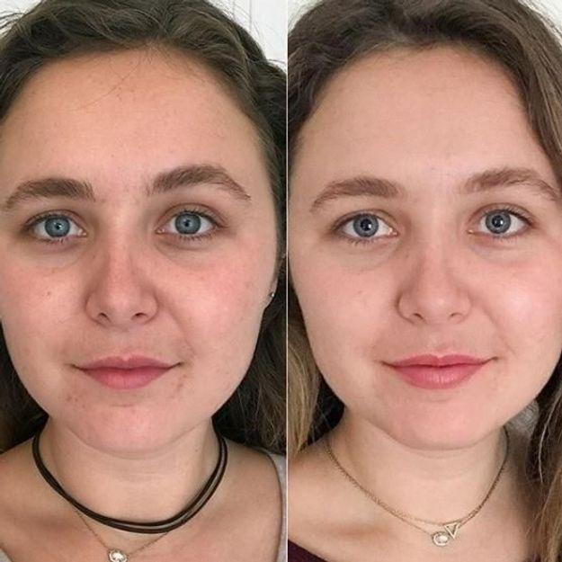 ... Glossier dévoile un nouveau produit bluffant contre l acné et les peaux  ternes 8be2095fd94