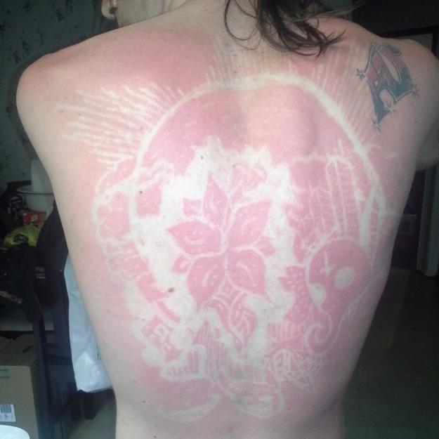 Les dermatologues d noncent la tendance des coups de soleil artistiques elle - Coup de soleil dans les yeux ...