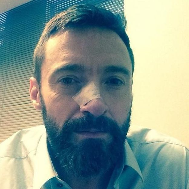 Hugh Jackmanopéré une nouvelle fois pour son cancer de la peau
