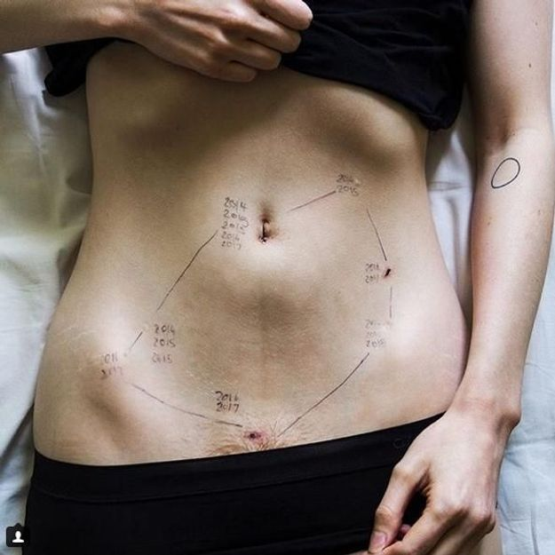 Endométriose : cette photo choc parle d'elle-même