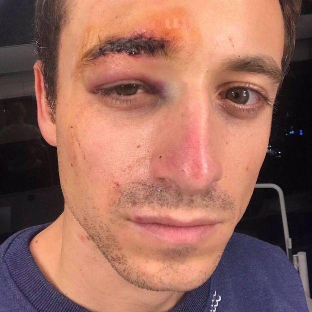 Hugo Clément blessé : son témoignage de la manif des gilets jaunes