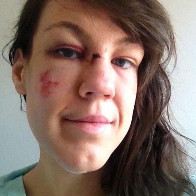 Une Britannique violemment attaquée partage la photo de ses coups