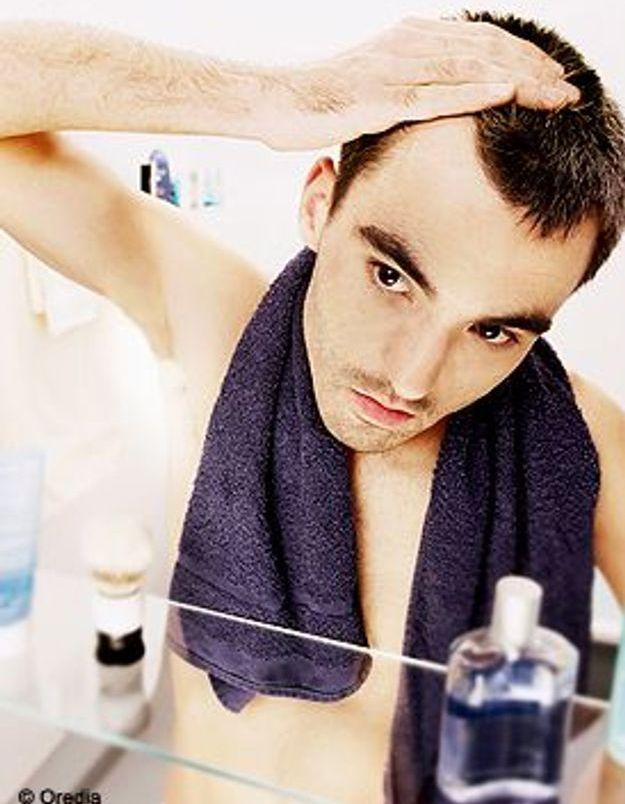 La greffe de cheveux, une opération lourde ?
