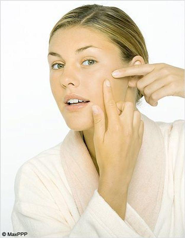 Faut-il traiter l'acné de nos ados ? - Elle