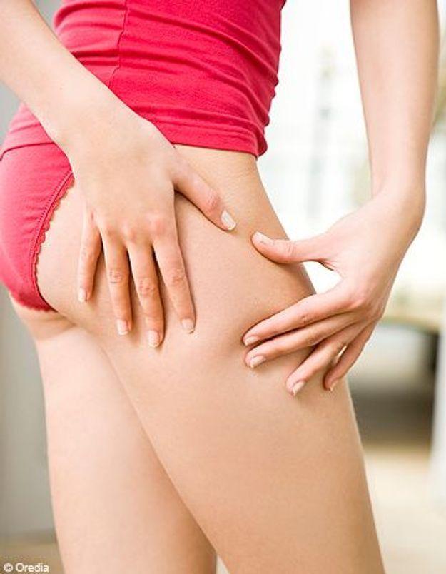 Un test pour prévenir la cellulite ?