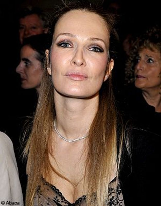Karen Mulder défigurée par son chirurgien esthétique ?