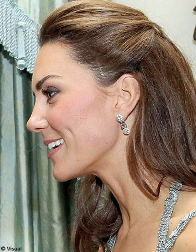 Kate Middleton : que cache sa cicatrice ? - Elle
