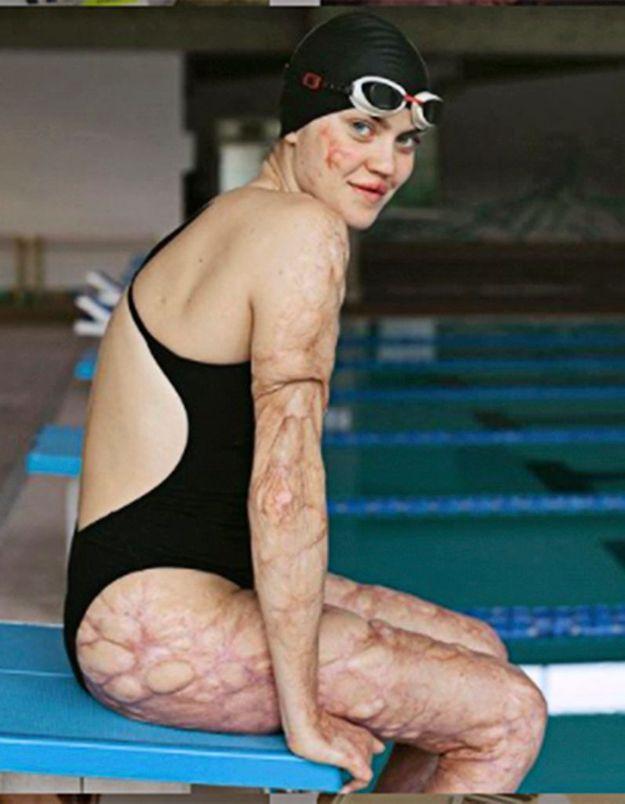 Le message d'espoir de la championne paralympique Veronica Yoko Plebani