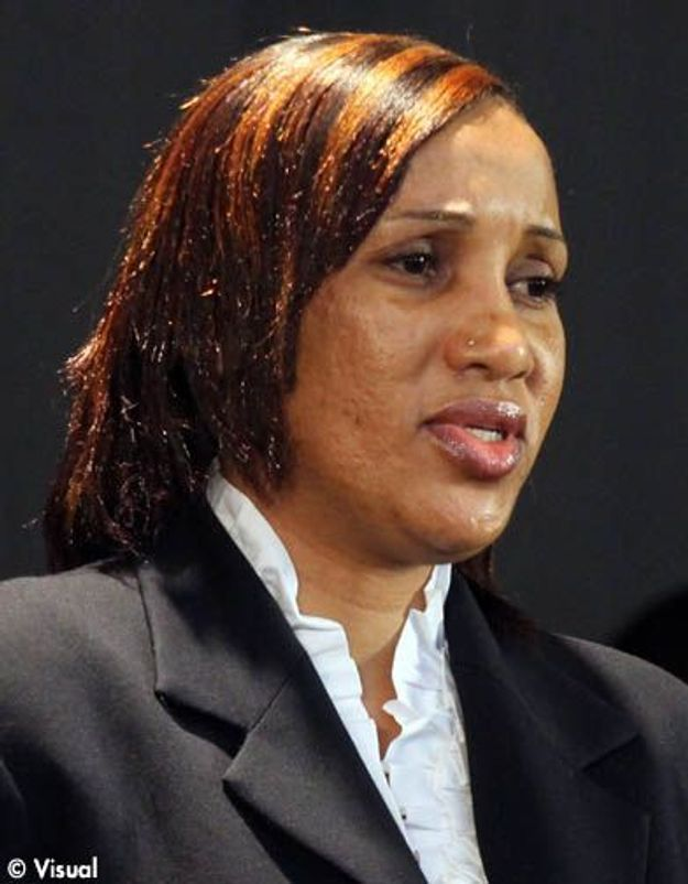 Le rapport médical de Nafissatou Diallo conclut au « viol »