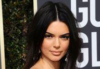 Attaquée sur son acné, Kendall Jenner répond