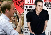 Le prince William accro aux implants capillaires ?