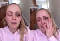 Une blogueuse dénonce les violences conjugales en montrant son visage tuméfié