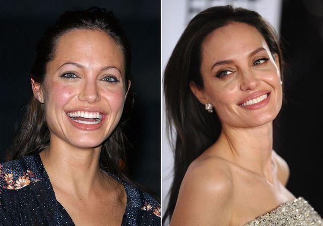 Les sourcils d'Angelina Jolie avant/après