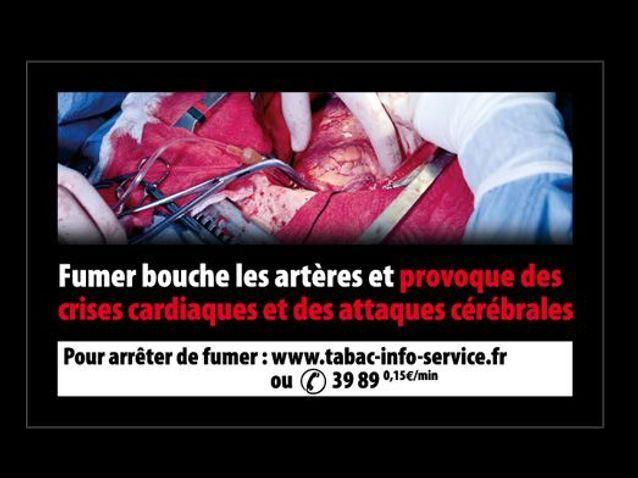 Au nombre de 14, ces nouveaux clichés sont censés représenter les dangers encourus par les 13,5 millions de fumeurs que compte la France.