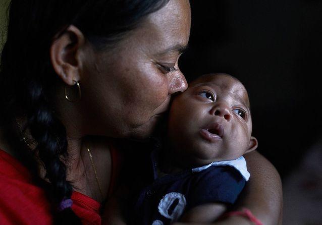 Zika : le combat des mères de bébés microcéphales au Brésil