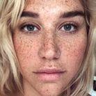 Kesha et ses taches de rousseur