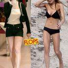 Le scandal de l'anorexie